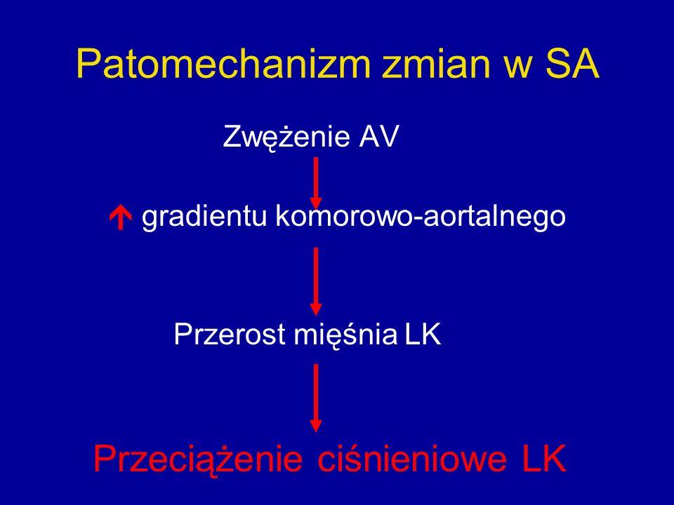 Patomechanizm zmian w SA Zwężenie AV  gradientu komorowo-aortalnego Przerost mięśnia LK Przeciążenie ciśnieniowe LK