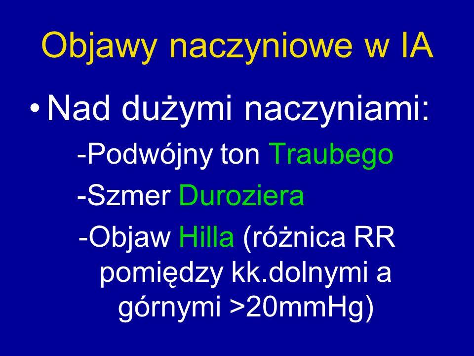 Objawy naczyniowe w IA Nad dużymi naczyniami: -Podwójny ton Traubego -Szmer Duroziera -Objaw Hilla (różnica RR pomiędzy kk.dolnymi a górnymi >20mmHg)