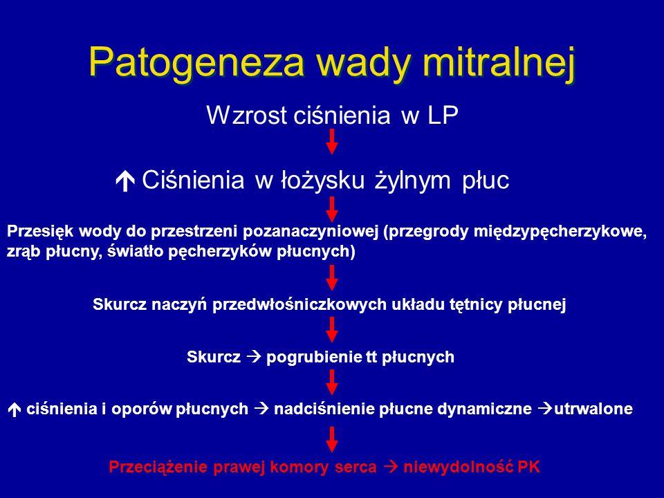 Patogeneza wady mitralnej Wzrost ciśnienia w LP  Ciśnienia w łożysku żylnym płuc Przesięk wody do przestrzeni pozanaczyniowej (przegrody międzypęcherzykowe, zrąb płucny, światło pęcherzyków płucnych) Skurcz naczyń przedwłośniczkowych układu tętnicy płucnej Skurcz  pogrubienie tt płucnych  ciśnienia i oporów płucnych  nadciśnienie płucne dynamiczne  utrwalone Przeciążenie prawej komory serca  niewydolność PK