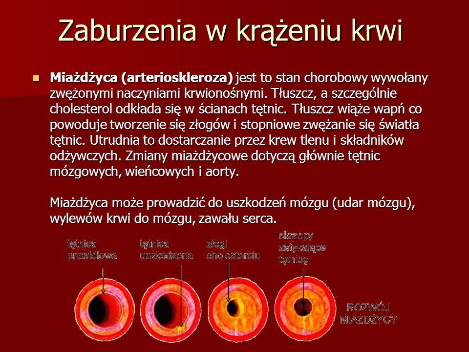 Zaburzenia w krążeniu krwi Miażdżyca (arterioskleroza) jest to stan chorobowy wywołany zwężonymi naczyniami krwionośnymi.