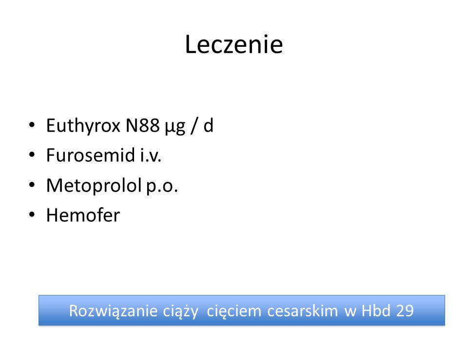 Leczenie Euthyrox N88 μg / d Furosemid i.v.Metoprolol p.o.