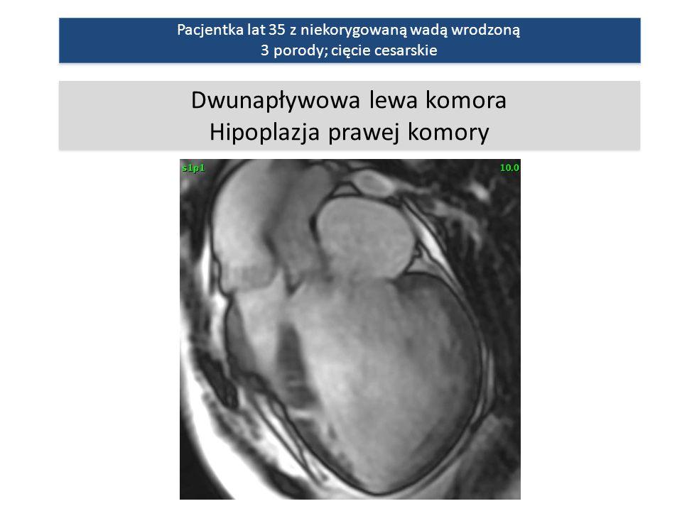Dwunapływowa lewa komora Hipoplazja prawej komory Dwunapływowa lewa komora Hipoplazja prawej komory Pacjentka lat 35 z niekorygowaną wadą wrodzoną 3 porody; cięcie cesarskie Pacjentka lat 35 z niekorygowaną wadą wrodzoną 3 porody; cięcie cesarskie