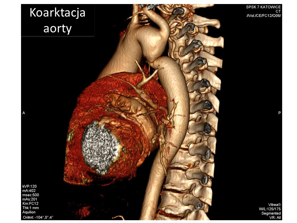 Koronarografia w normie Koarktacja aorty
