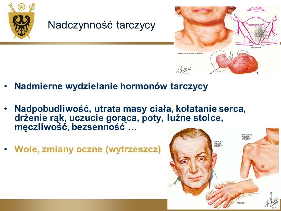 Nadczynność tarczycy Nadmierne wydzielanie hormonów tarczycy Nadpobudliwość, utrata masy ciała, kołatanie serca, drżenie rąk, uczucie gorąca, poty, luźne stolce, męczliwość, bezsenność … Wole, zmiany oczne (wytrzeszcz)