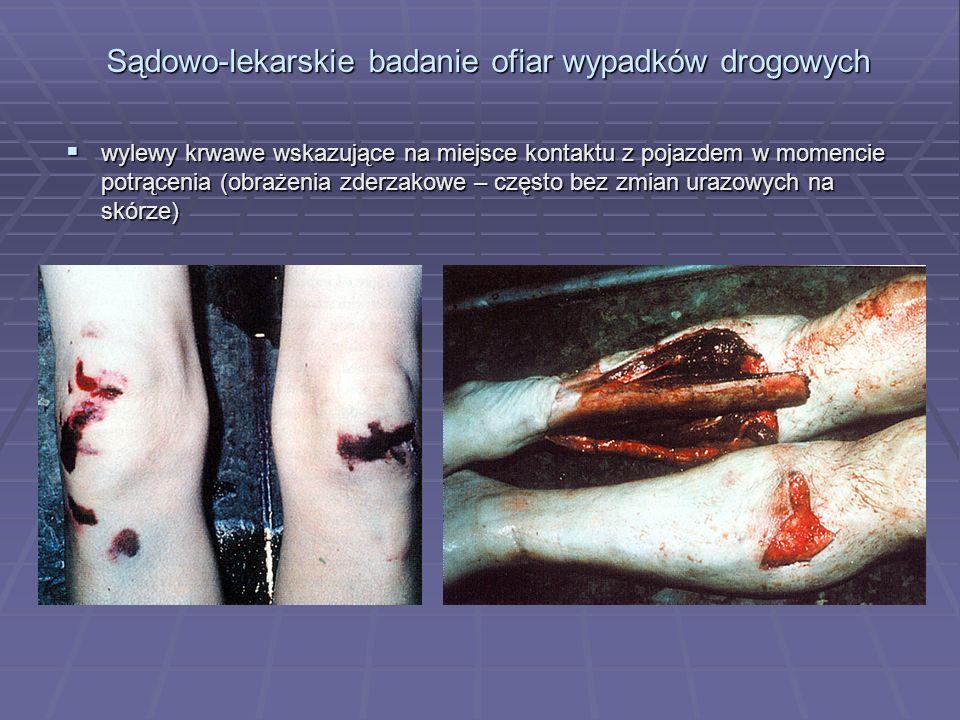 Sądowo-lekarskie badanie ofiar wypadków drogowych  wylewy krwawe wskazujące na miejsce kontaktu z pojazdem w momencie potrącenia (obrażenia zderzakowe – często bez zmian urazowych na skórze)