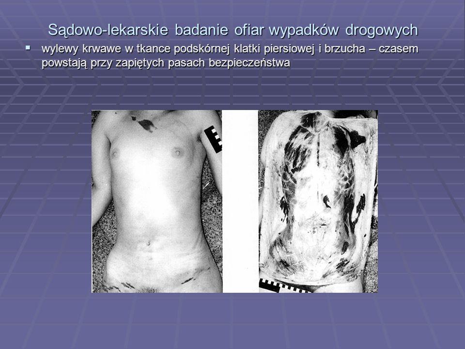 Sądowo-lekarskie badanie ofiar wypadków drogowych  wylewy krwawe w tkance podskórnej klatki piersiowej i brzucha – czasem powstają przy zapiętych pasach bezpieczeństwa