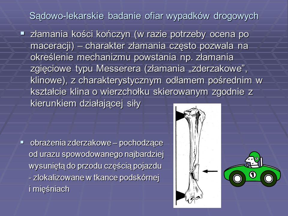 Sądowo-lekarskie badanie ofiar wypadków drogowych  złamania kości kończyn (w razie potrzeby ocena po maceracji) – charakter złamania często pozwala na określenie mechanizmu powstania np.