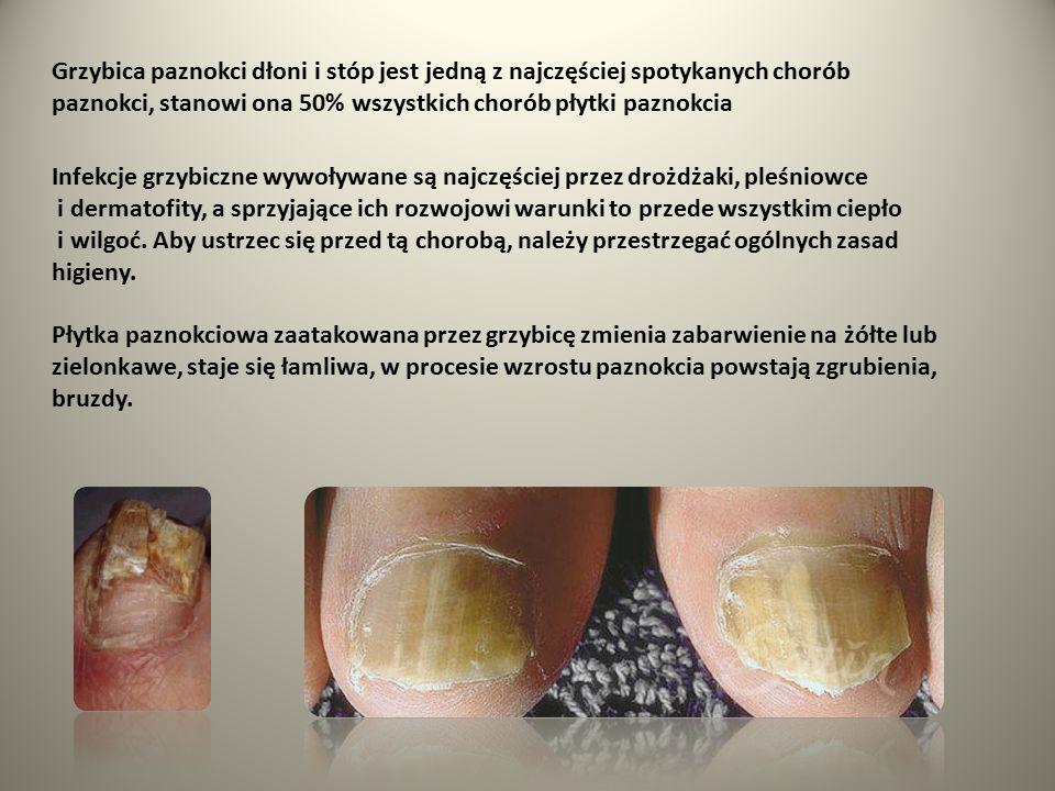 Grzybica paznokci dłoni i stóp jest jedną z najczęściej spotykanych chorób paznokci, stanowi ona 50% wszystkich chorób płytki paznokcia Infekcje grzyb