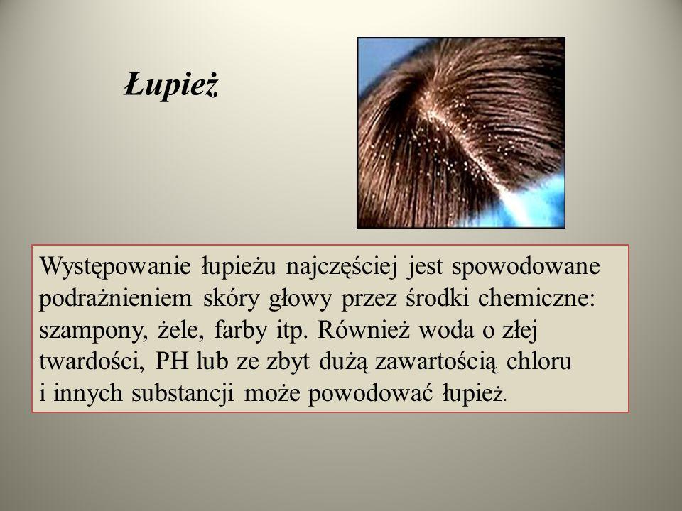 Łupież Występowanie łupieżu najczęściej jest spowodowane podrażnieniem skóry głowy przez środki chemiczne: szampony, żele, farby itp. Również woda o z