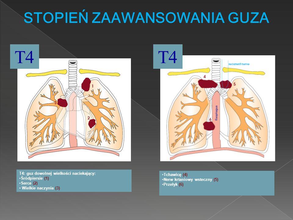 STOPIEŃ ZAAWANSOWANIA GUZA T4 T4: guz dowolnej wielkości naciekający: Śródpiersie (1) Serce (2) Wielkie naczynia (3) T4 Tchawicę (4) Nerw krtaniowy ws
