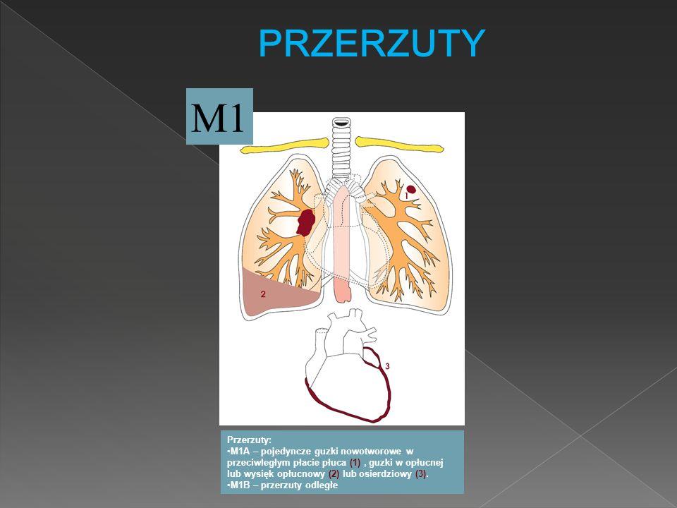 PRZERZUTY M1 Przerzuty: M1A – pojedyncze guzki nowotworowe w przeciwległym płacie płuca (1), guzki w opłucnej lub wysięk opłucnowy (2) lub osierdziowy