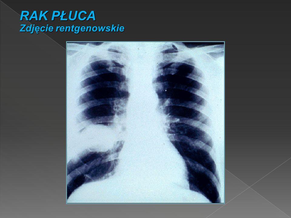 RAK PŁUCA Zdjęcie rentgenowskie