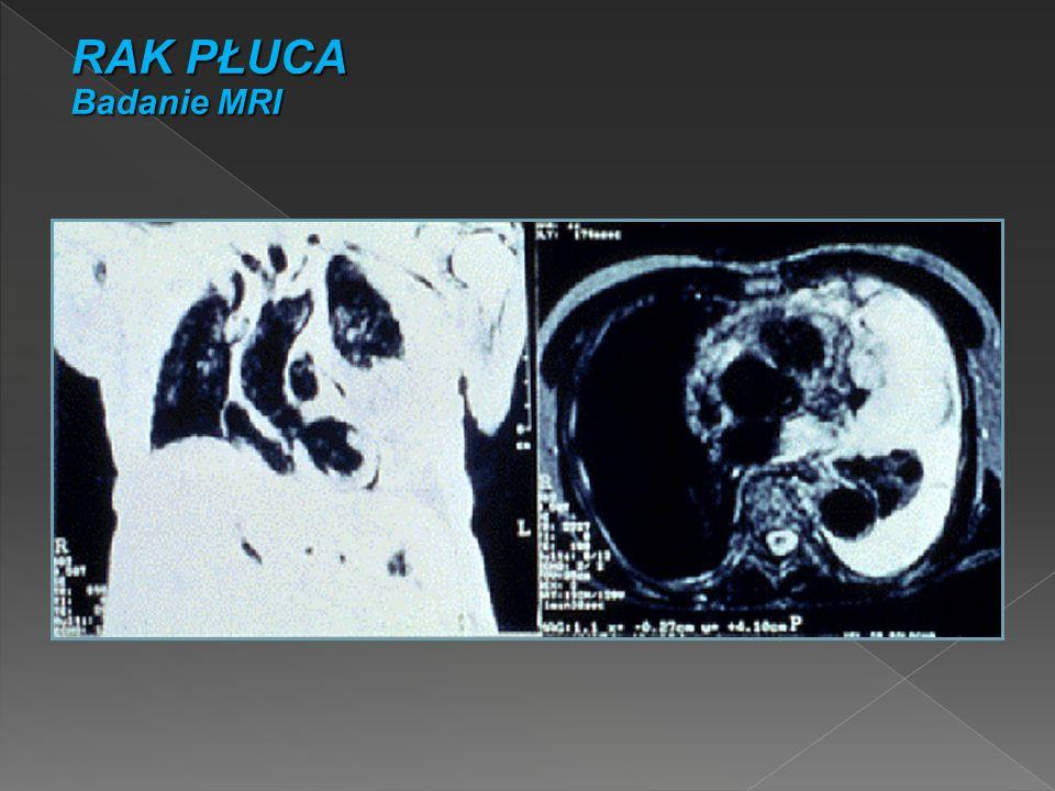 RAK PŁUCA Badanie MRI