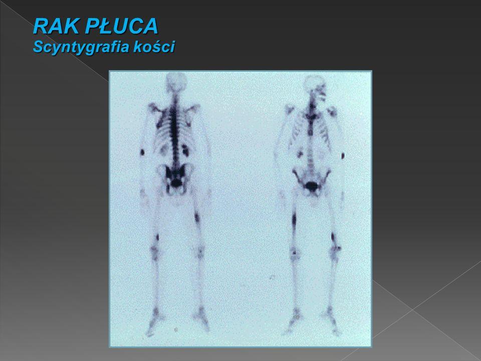 RAK PŁUCA Scyntygrafia kości