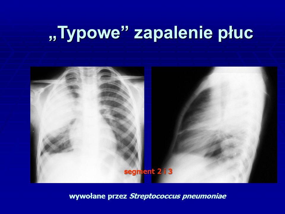 """""""Typowe zapalenie płuc wywołane przez Streptococcus pneumoniae segment 2 i 3"""