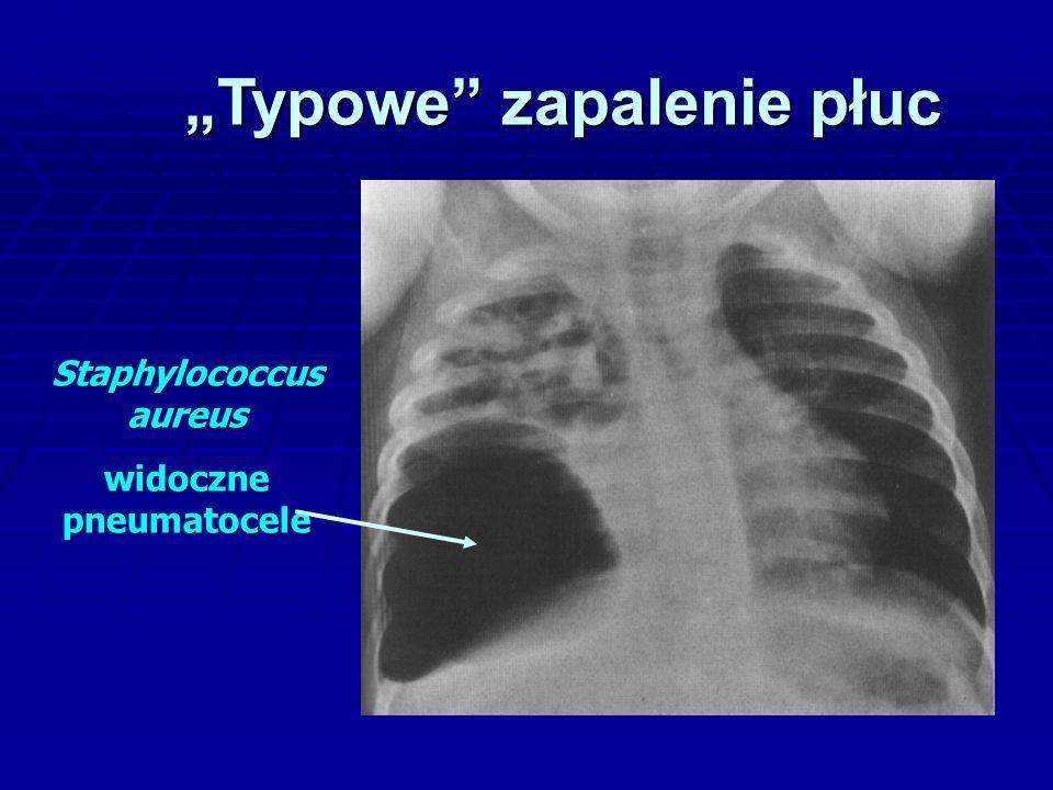 """""""Typowe zapalenie płuc Staphylococcus aureus widoczne pneumatocele"""