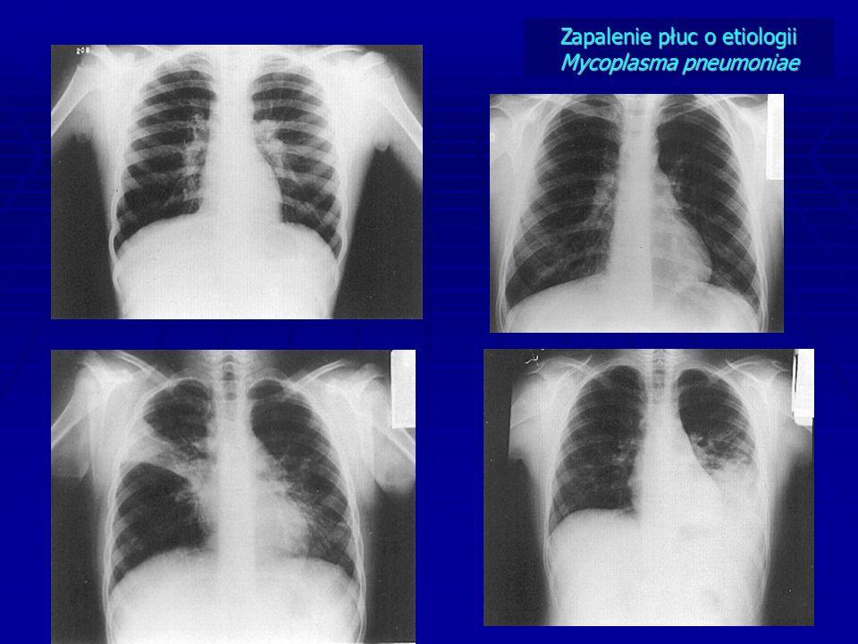 Zapalenie płuc o etiologii Mycoplasma pneumoniae