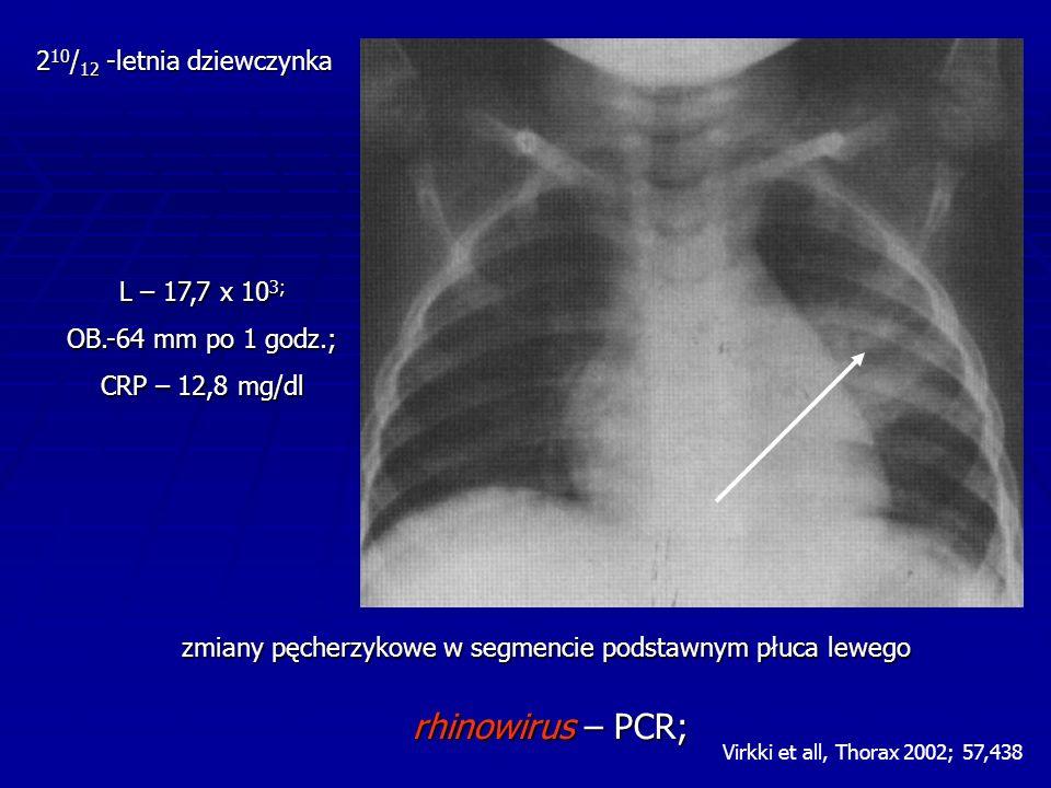 L – 17,7 x 10 3; OB.-64 mm po 1 godz.; CRP – 12,8 mg/dl 2 10 / 12 -letnia dziewczynka zmiany pęcherzykowe w segmencie podstawnym płuca lewego rhinowirus – PCR; Virkki et all, Thorax 2002; 57,438