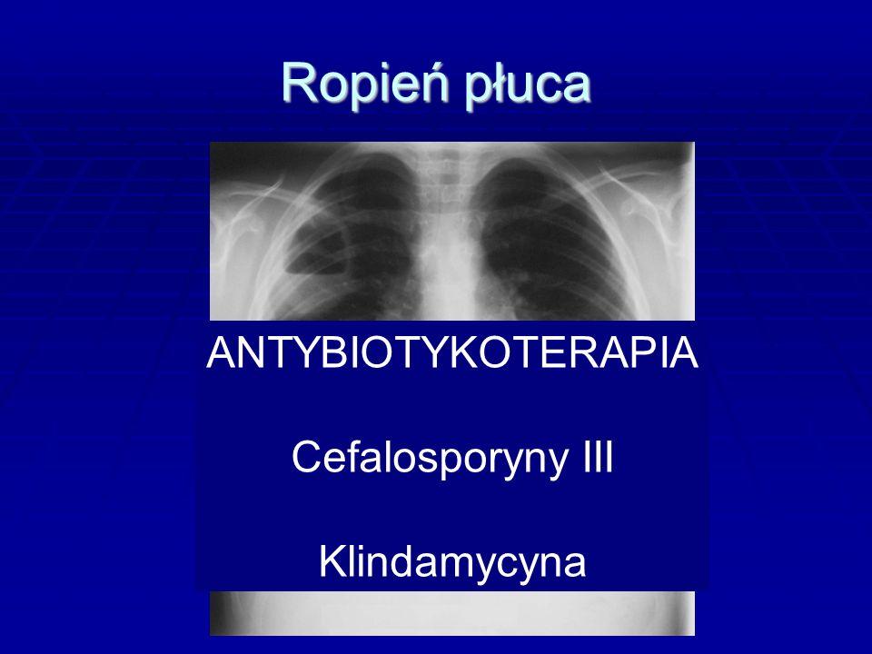 Ropień płuca ANTYBIOTYKOTERAPIA Cefalosporyny III Klindamycyna