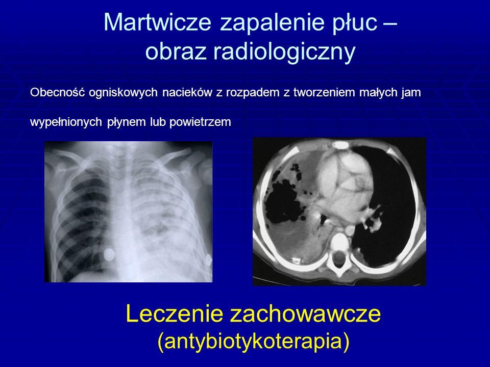 Martwicze zapalenie płuc – obraz radiologiczny Obecność ogniskowych nacieków z rozpadem z tworzeniem małych jam wypełnionych płynem lub powietrzem Leczenie zachowawcze (antybiotykoterapia)