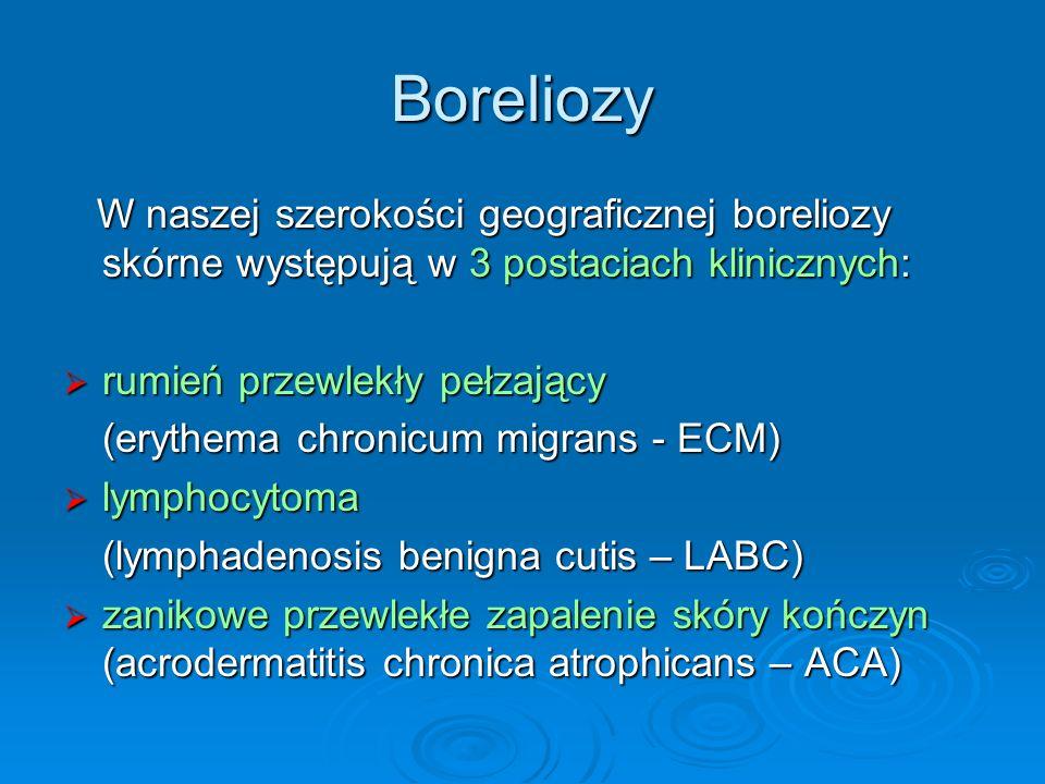 Boreliozy W naszej szerokości geograficznej boreliozy skórne występują w 3 postaciach klinicznych: W naszej szerokości geograficznej boreliozy skórne występują w 3 postaciach klinicznych:  rumień przewlekły pełzający (erythema chronicum migrans - ECM)  lymphocytoma (lymphadenosis benigna cutis – LABC)  zanikowe przewlekłe zapalenie skóry kończyn (acrodermatitis chronica atrophicans – ACA)