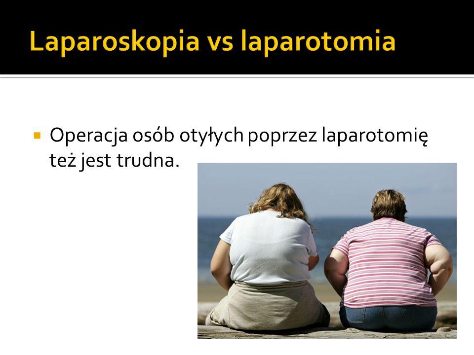  Operacja osób otyłych poprzez laparotomię też jest trudna.