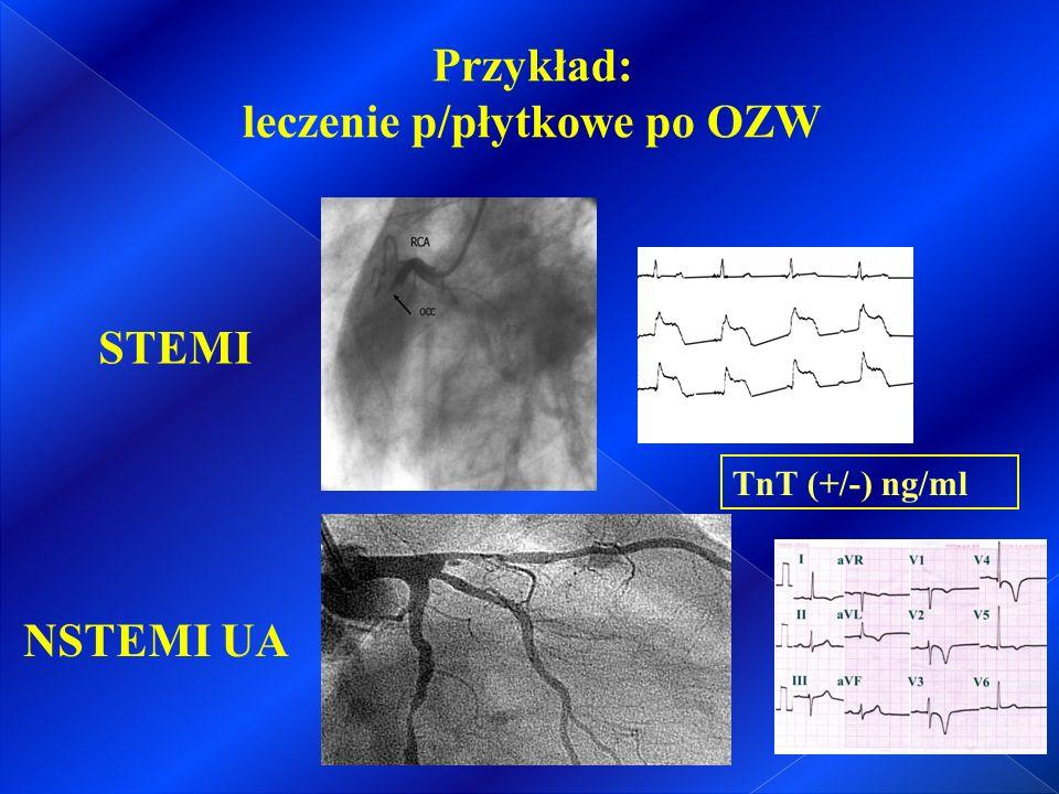 Schemat wyboru antagonisty receptora P2Y12 w zależności od charakterystyki klinicznej chorego z OZW (model B) D.
