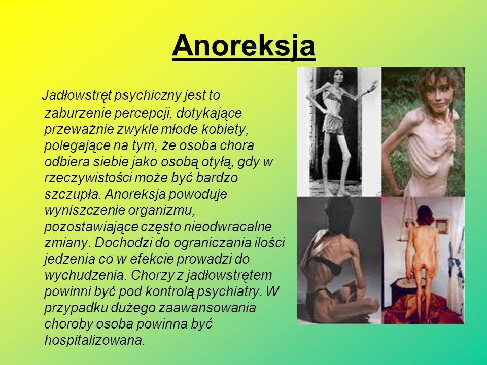 Anoreksja Jadłowstręt psychiczny jest to zaburzenie percepcji, dotykające przeważnie zwykle młode kobiety, polegające na tym, że osoba chora odbiera siebie jako osobą otyłą, gdy w rzeczywistości może być bardzo szczupła.