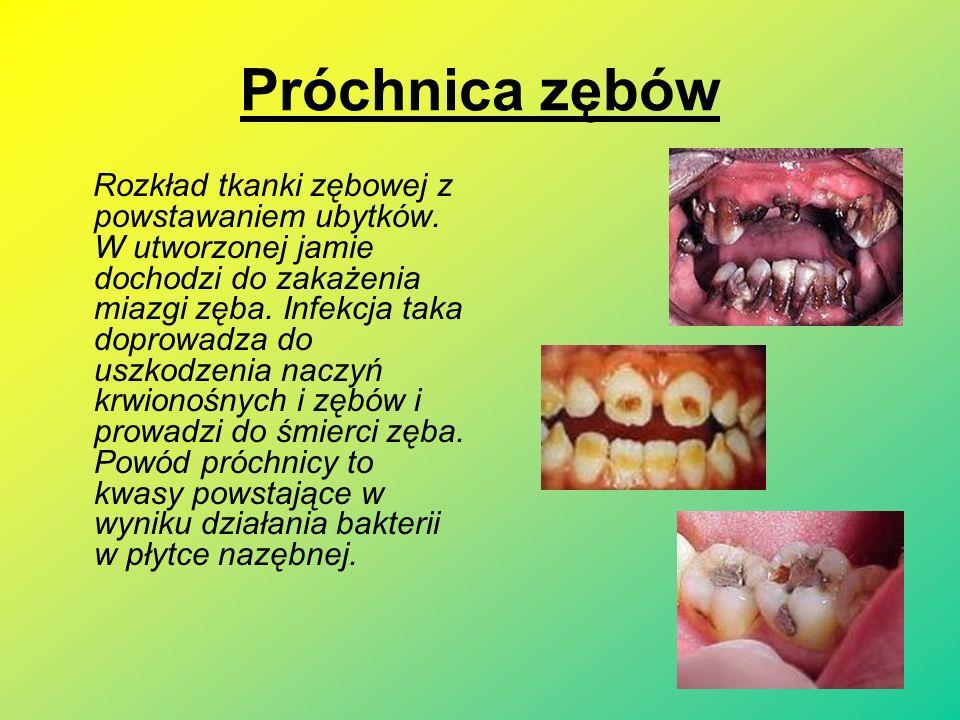 Próchnica zębów Rozkład tkanki zębowej z powstawaniem ubytków.