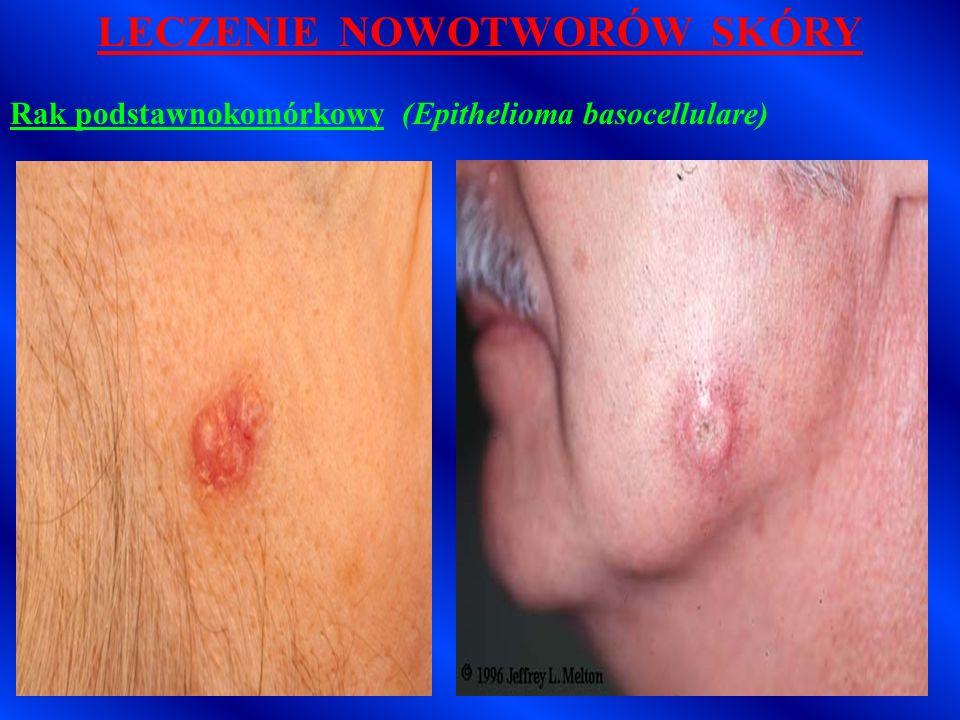 LECZENIE NOWOTWORÓW SKÓRY Rak podstawnokomórkowy (Epithelioma basocellulare, BCC) Wskazania: - zmiany wyraźnie odgraniczone (zwłaszcza powierzchowne typy odmiany guzkowej i wrzodziejącej) - wykwity mnogie i sąsiadujące z ogniskami rogowacenia starczego – leczenie jednoczasowe - guzy o średnicy do 2 cm (wyjątek- odmiana wieloogniskowa) - ogniska zlokalizowane nad tkanką chrzęstną lub kostną - guzy na powiekach, nosie i małżowinach usznych - zmiany zainfekowane - guzy nawrotowe po radioterapii