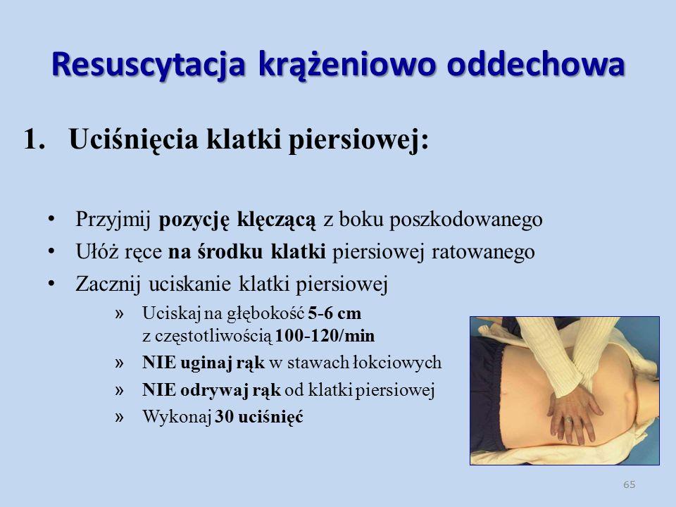 Resuscytacja krążeniowo oddechowa 1.Uciśnięcia klatki piersiowej: Przyjmij pozycję klęczącą z boku poszkodowanego Ułóż ręce na środku klatki piersiowej ratowanego Zacznij uciskanie klatki piersiowej » Uciskaj na głębokość 5-6 cm z częstotliwością 100-120/min » NIE uginaj rąk w stawach łokciowych » NIE odrywaj rąk od klatki piersiowej » Wykonaj 30 uciśnięć 65