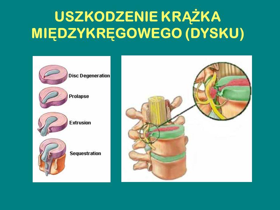 ZAGRO Ż ENIA W PRACY PIEL Ę GNIARKI - Przemieszczanie i podnoszenie pacjentów przy - zabiegach opiekuńczo – pielęgnacyjnych - badaniach diagnostycznych - terapii pacjentów (radioterapia) - Nieprawidłowa pozycja ciała pracownika przy - zabiegach diagnostycznych – POBIERANIE KRWI - zabiegach pielęgnacyjnych - zabiegach terapeutycznych – WLEWY, ZABIEGI OPERACYJNE - prowadzeniu dokumentacji