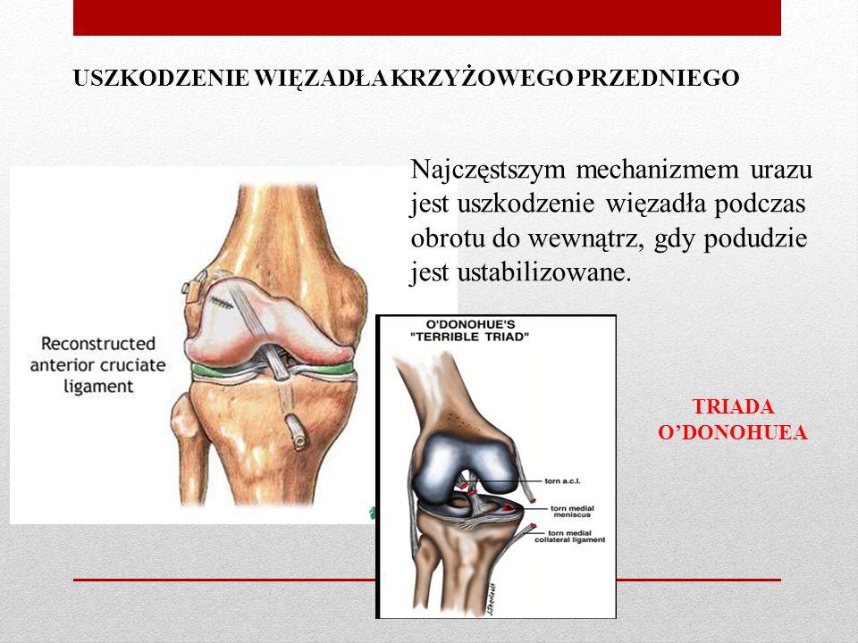 USZKODZENIE WIĘZADŁA KRZYŻOWEGO PRZEDNIEGO Najczęstszym mechanizmem urazu jest uszkodzenie więzadła podczas obrotu do wewnątrz, gdy podudzie jest ustabilizowane.