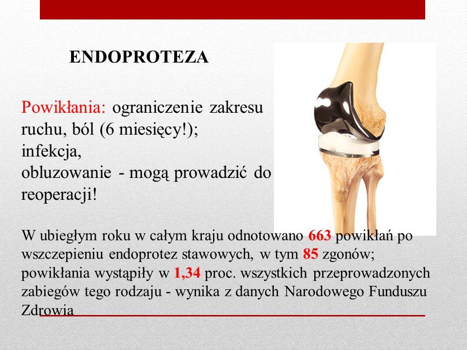 ENDOPROTEZA Powikłania: ograniczenie zakresu ruchu, ból (6 miesięcy!); infekcja, obluzowanie - mogą prowadzić do reoperacji.