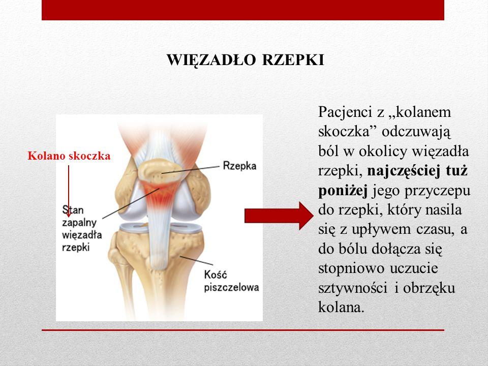 """WIĘZADŁO RZEPKI Kolano skoczka Pacjenci z """"kolanem skoczka odczuwają ból w okolicy więzadła rzepki, najczęściej tuż poniżej jego przyczepu do rzepki, który nasila się z upływem czasu, a do bólu dołącza się stopniowo uczucie sztywności i obrzęku kolana."""