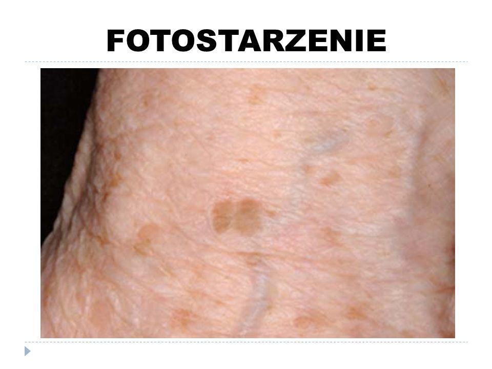 FOTOPROTEKCJA pielęgnacja skóry objętej fotostarzeniem FILTRY UV