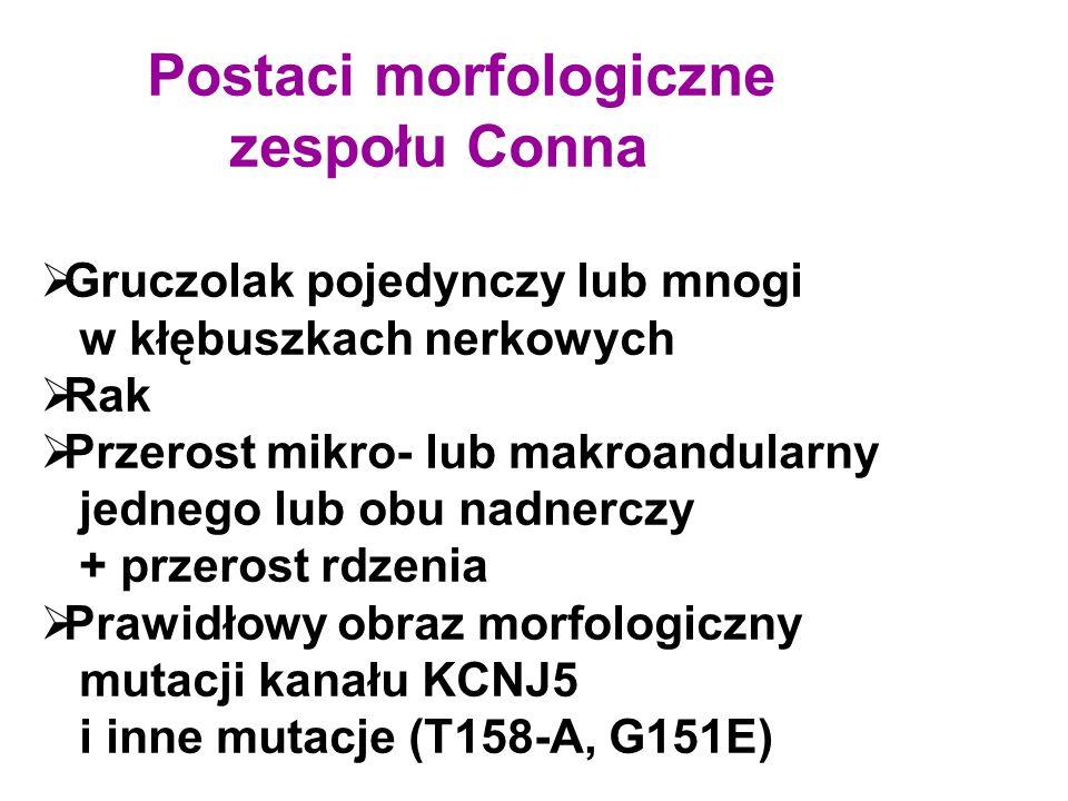 Postaci morfologiczne zespołu Conna  Gruczolak pojedynczy lub mnogi w kłębuszkach nerkowych  Rak  Przerost mikro- lub makroandularny jednego lub obu nadnerczy + przerost rdzenia  Prawidłowy obraz morfologiczny mutacji kanału KCNJ5 i inne mutacje (T158-A, G151E)