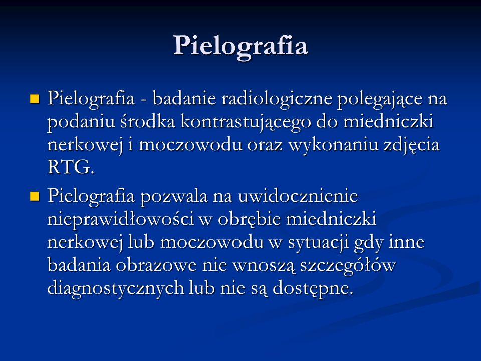 Pielografia Pielografia - badanie radiologiczne polegające na podaniu środka kontrastującego do miedniczki nerkowej i moczowodu oraz wykonaniu zdjęcia RTG.