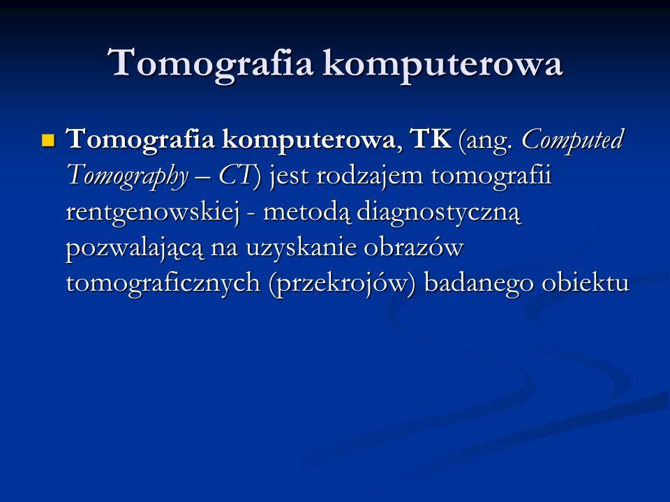 Tomografia komputerowa Tomografia komputerowa, TK (ang.