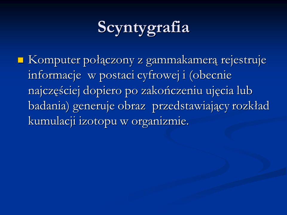 Scyntygrafia Komputer połączony z gammakamerą rejestruje informacje w postaci cyfrowej i (obecnie najczęściej dopiero po zakończeniu ujęcia lub badania) generuje obraz przedstawiający rozkład kumulacji izotopu w organizmie.