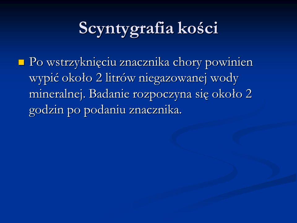 Scyntygrafia kości Po wstrzyknięciu znacznika chory powinien wypić około 2 litrów niegazowanej wody mineralnej.