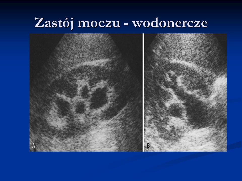 Przeciwwskazania do PET Badania PET/CT nie należy przeprowadzać bezpośrednio lub w trakcie radioterapii, chemioterapii ( z wyj.