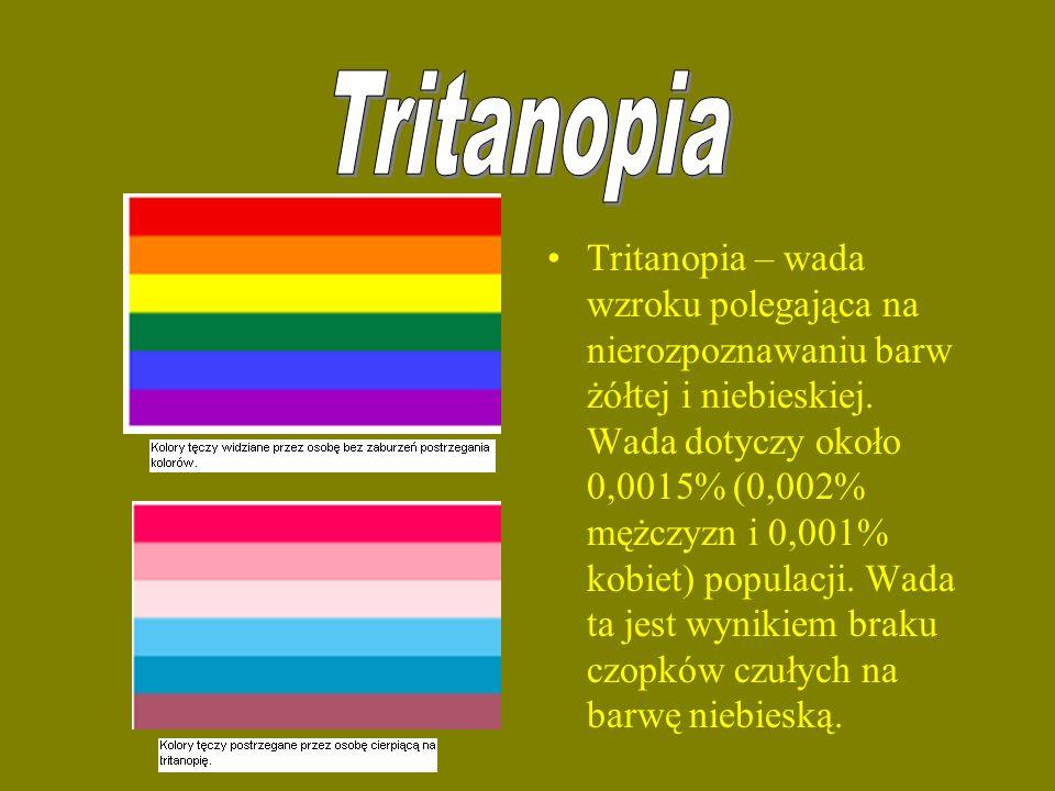 Tritanopia – wada wzroku polegająca na nierozpoznawaniu barw żółtej i niebieskiej. Wada dotyczy około 0,0015% (0,002% mężczyzn i 0,001% kobiet) popula