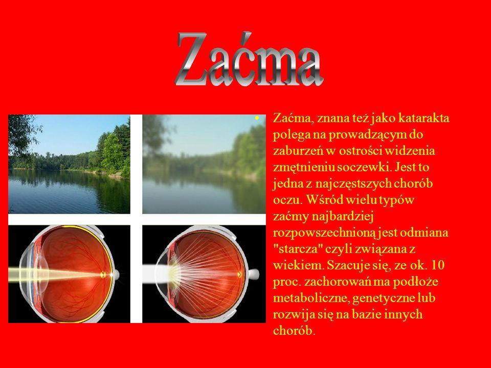 Zaćma, znana też jako katarakta polega na prowadzącym do zaburzeń w ostrości widzenia zmętnieniu soczewki. Jest to jedna z najczęstszych chorób oczu.