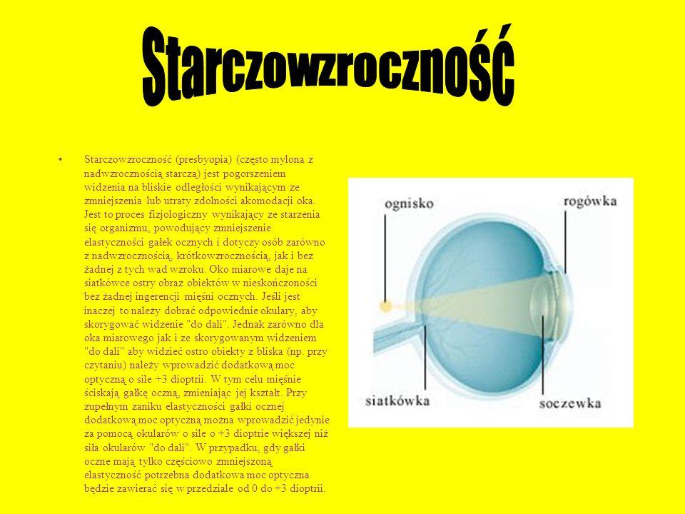 Starczowzroczność (presbyopia) (często mylona z nadwzrocznością starczą) jest pogorszeniem widzenia na bliskie odległości wynikającym ze zmniejszenia