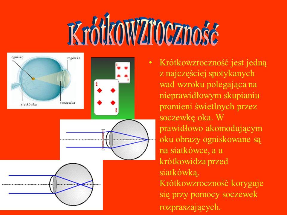 Nadwzroczność (dalekowzroczność) jest drugą obok krótkowzroczności najczęściej spotykaną wadą wzroku.