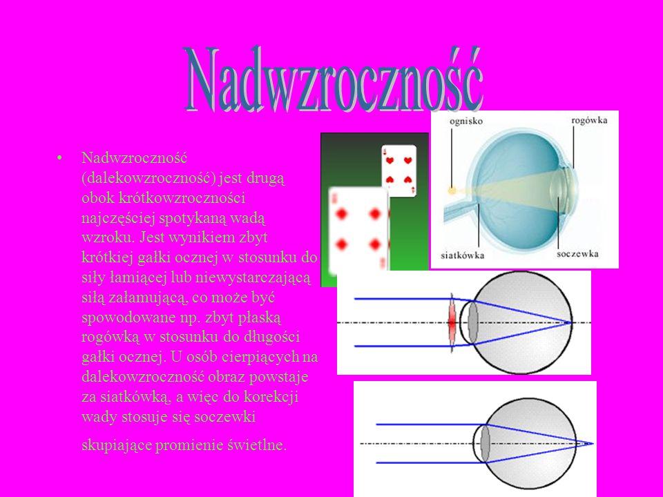 Nadwzroczność (dalekowzroczność) jest drugą obok krótkowzroczności najczęściej spotykaną wadą wzroku. Jest wynikiem zbyt krótkiej gałki ocznej w stosu