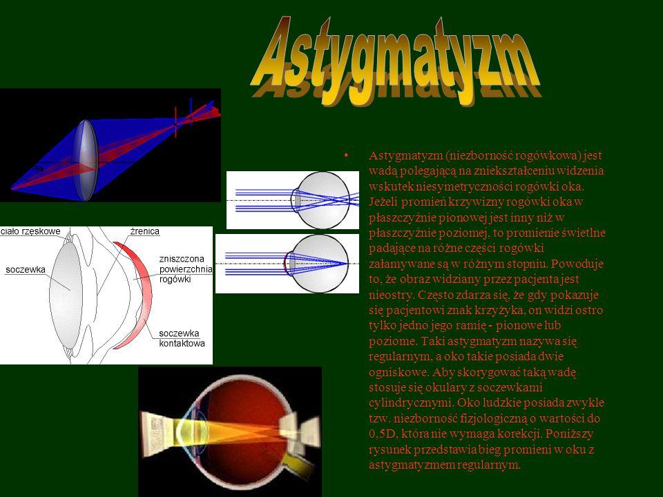 Astygmatyzm (niezborność rogówkowa) jest wadą polegającą na zniekształceniu widzenia wskutek niesymetryczności rogówki oka. Jeżeli promień krzywizny r