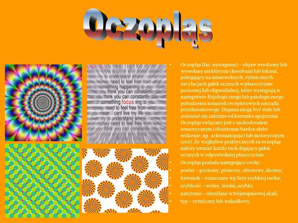 Oczopląs (łac. nystagmus) – objaw wrodzony lub wywołany niektórymi chorobami lub lekami, polegający na mimowolnych, rytmicznych oscylacjach gałek oczn
