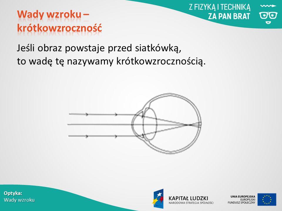 Optyka: Wady wzroku Jeśli obraz powstaje przed siatkówką, to wadę tę nazywamy krótkowzrocznością.